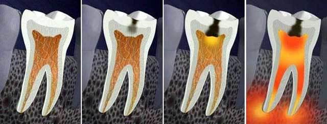 Пульпит зуба: что это такое, симптомы, методы лечения, осложнения
