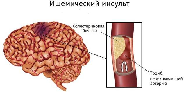 Обширный инсульт головного мозга: последствия, шансы выжить, прогноз