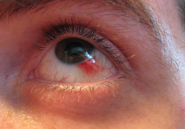 Из-за чего могут лопаться сосуды в глазах?