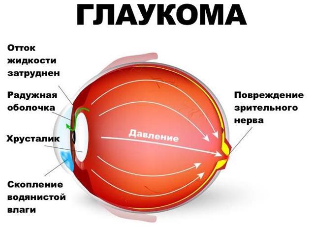 Болит левая часть головы и глаз: причины, диагностика и лечение