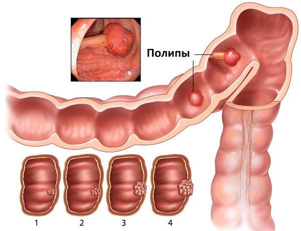 Лечение полипов в кишечнике народными средствами в домашних условиях