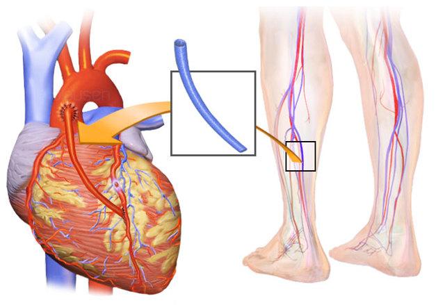 Реабилитация после операции на сердце шунтирование