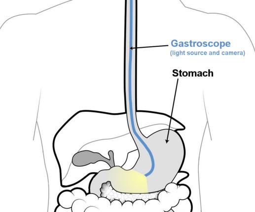 Гастроскопия желудка - как проводится, как подготовиться, правила питания