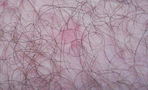 Красные волдыри на теле чешутся: фото высыпаний на коже, что это может быть, а также, можно ли прокалывать пузырьки с жидкостью, и что делать при сильном жжении?