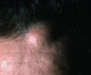 Жировик на голове: причины и особенности удаления