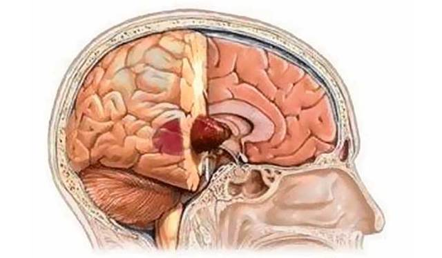 Опухоли головного мозга - причины, симптомы, диагностика и лечение
