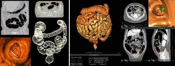 КТ кишечника – подготовка к процедуре, что показывает исследование