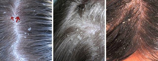 Почему может шелушится кожа головы: болезни, диагностика, лечение