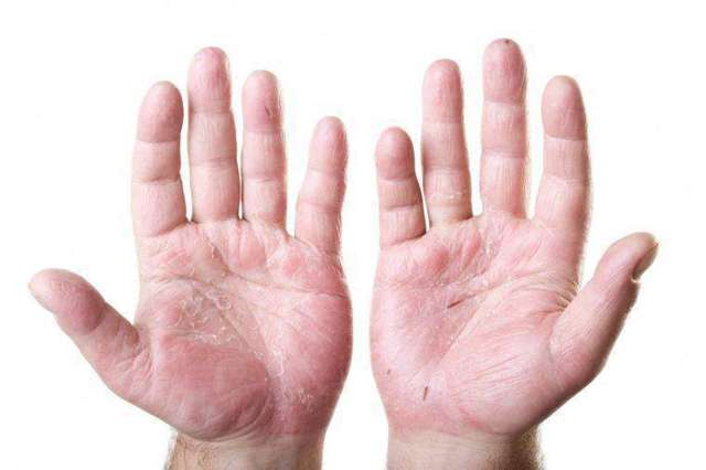 Мокнущая экзема: лечение на руках, ногах и лице, фото