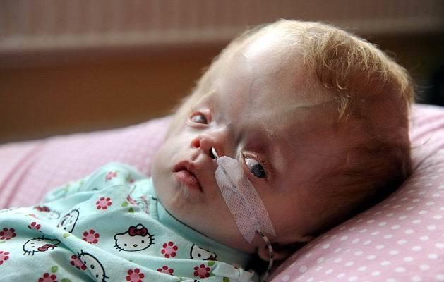 Синдром Денди Уокера (аномалия, мальформация): причины, симптомы, лечение