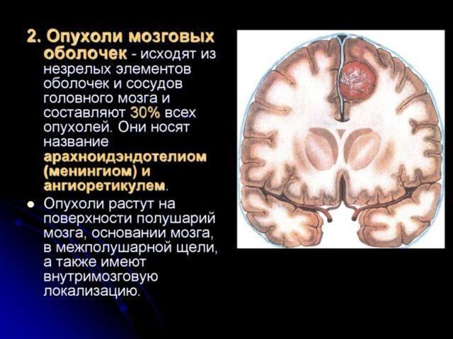 Менингиома головного мозга: прогноз жизни и лечение