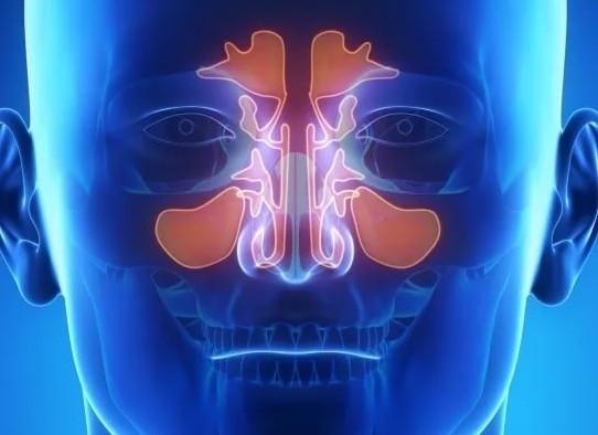 Головная боль при гайморите: как болит голова при гайморите - что делать