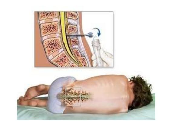 Спинномозговая жидкость и ее анализ, состав ликвора