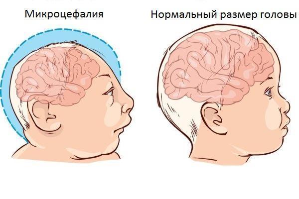 Микроцефалия у детей, причины возникновения и симптомы - Неврология