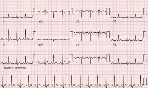 Как улучшить кардиограмму перед медкомиссией