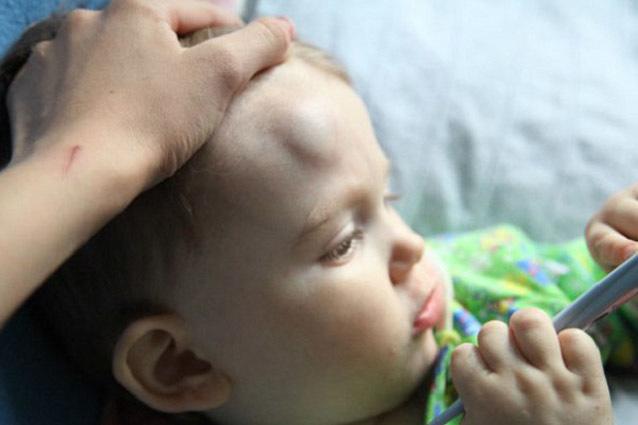 Шишка на лбу у ребенка от удара: что делать и чем лечить
