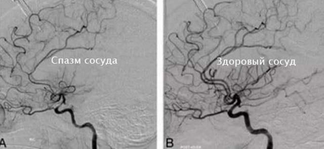 Спазм сосудов головного мозга: симптомы, методы лечения, профилактика
