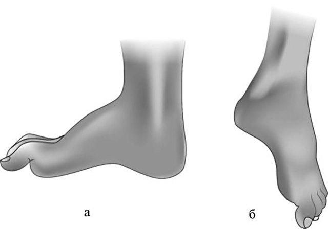 Нейропатия малоберцового нерва код по мкб 10