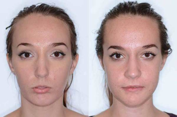 Парез лицевого нерва - причины, симптомы и лечение