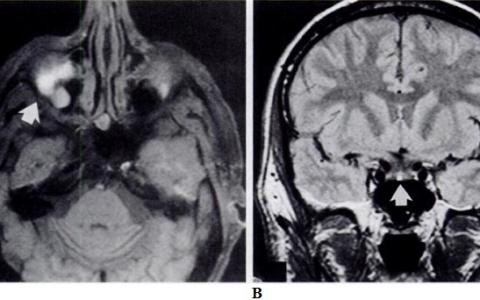 Может ли МРТ ошибаться?