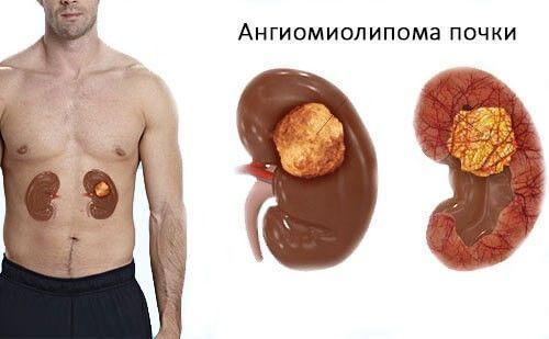 Лейкопения: лейкоциты при онкологии - сколько должно быть, уровень лейкоцитов при раке, показатели