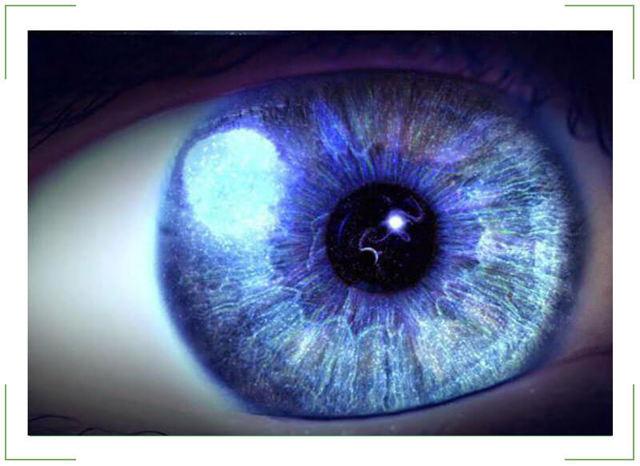 Вспышки в глазах - причины если сбоку, появляются белые пятна при моргании в темноте, огненные и яркие при закрытых, искры