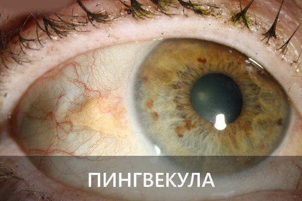 Желтое пятно глаза на белке - точка на зрачках, белое