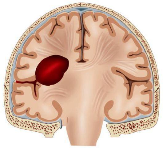 Гематома - лечение, удаление, признаки, причины.