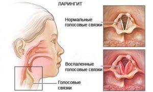Невроз глотки - причины, симптомы, диагностика и лечение