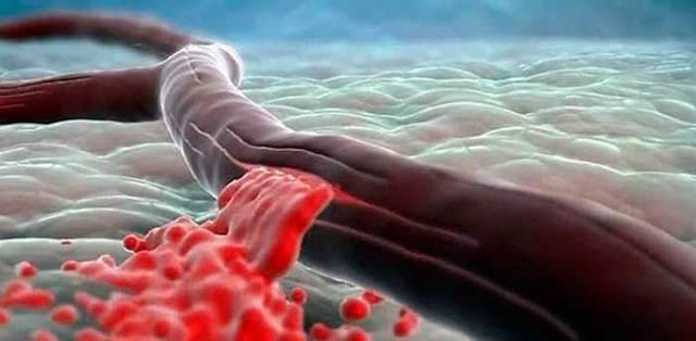 Кровоизлияние в желудках головного мозга: причины, симптомы, диагностика, лечение, профилактика