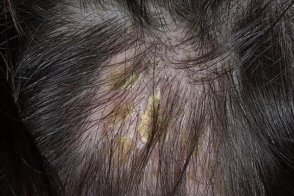 Себорея кожи головы у детей