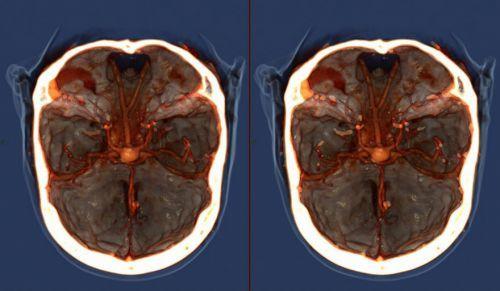 Что такое МРТ с контрастированием