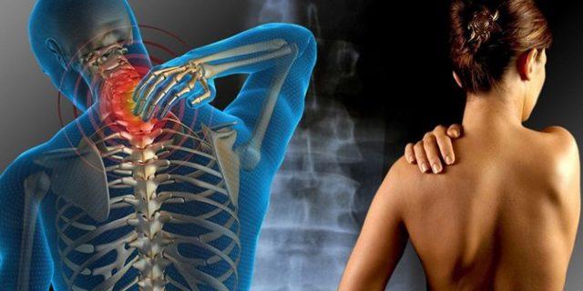 Боли в шее и плечах: причины и лечение сильной боли в мышцах