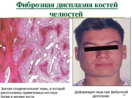 Фиброзная дисплазия костей: причины, симптомы, лечение