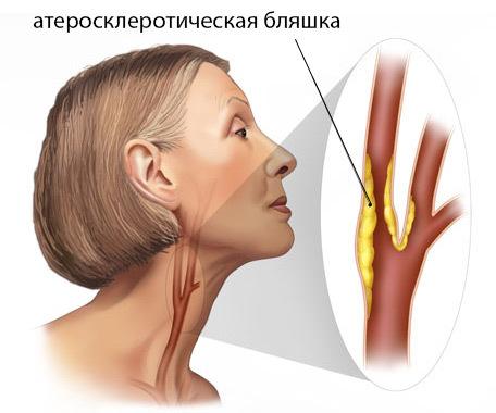 Атеросклероз позвоночных артерий - что это?