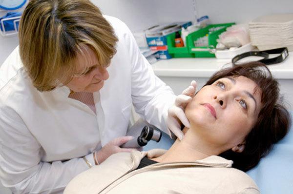 Папиллома на голове в волосах: фото, удаление, лечение