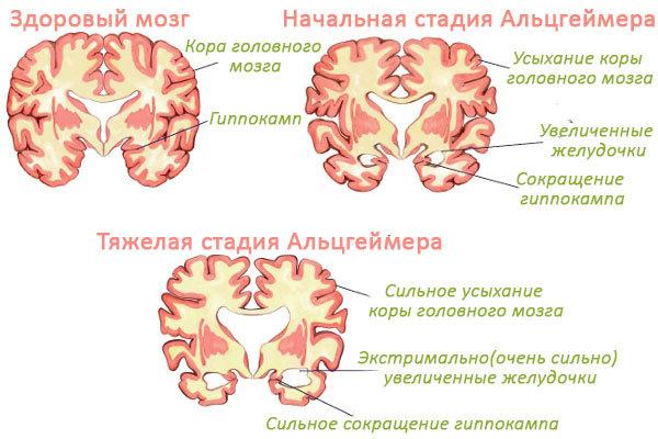 Очаговое поражение головного мозга: что это такое, очаги на МРТ, симптомы, диагностика, лечение