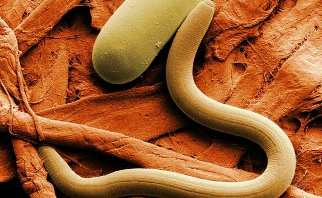 Как принимать чеснок от паразитов: антипаразитарная чистка в домашних условиях