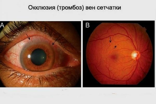 Туман в глазах - причины помутнения и мутности, почему мутный, лечение, если мутно видит, помутнело, что делать, если мутнеет, дымка