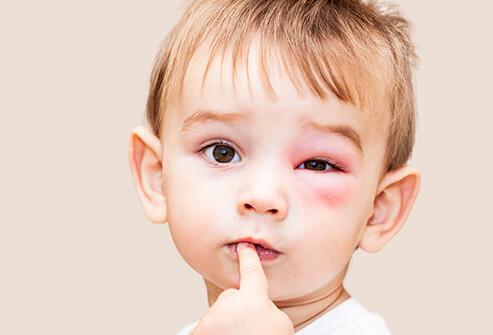 Может ли быть аллергия на малиновое варенье