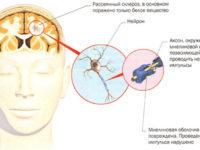 Бульбарный синдром - причины, симптомы, лечение