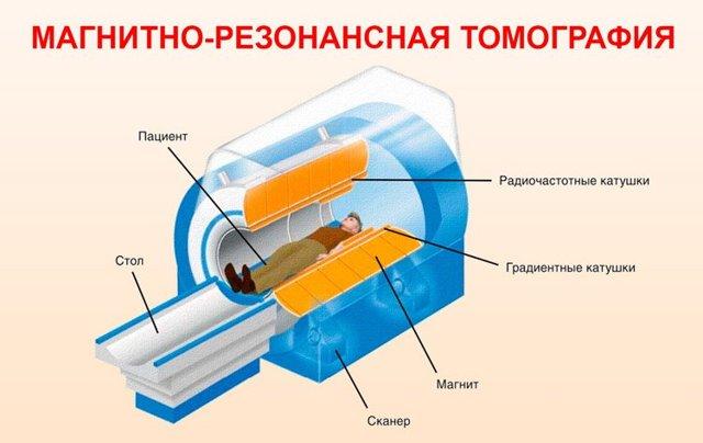 Процедура обследования МРТ всего тела (организма) – зачем делать, есть ли вред