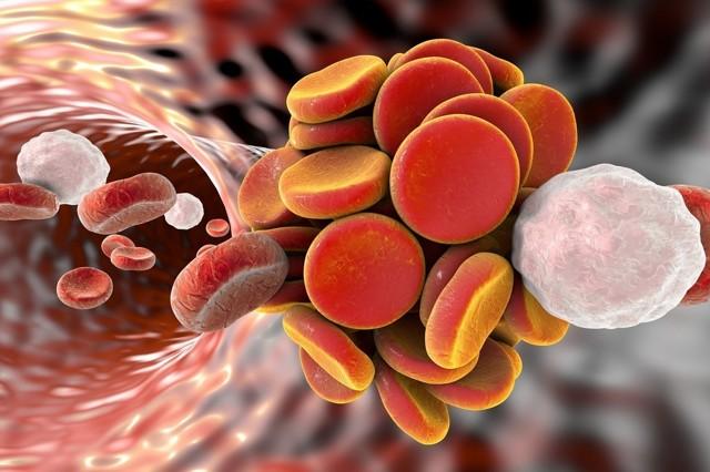 Норма тромбоцитов в крови у мужчин по возрасту, таблица