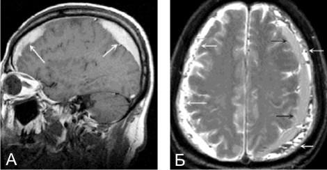 Субдуральная гематома головного мозга последствия