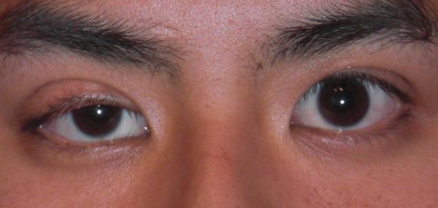 Один глаз больше другого: что делать и как исправить?