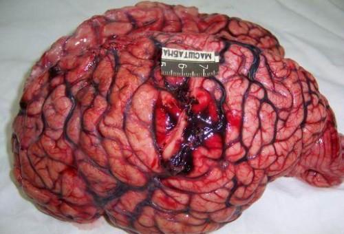 Разрыв аневризмы сосудов головного мозга последствия