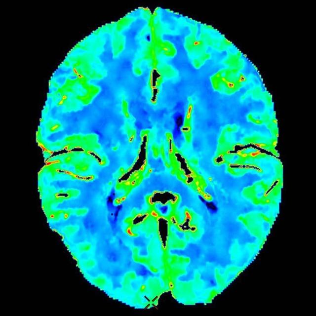 Церебральная ангиография сосудов головного мозга