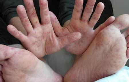 Вирус Коксаки у ребенка: симптомы, виды и лечение