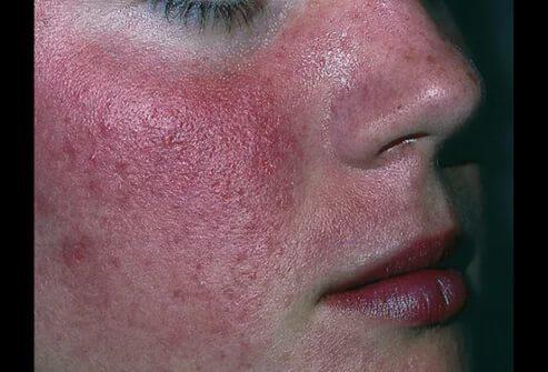 Хеликобактер пилори на лице - как избавиться от проблемы?