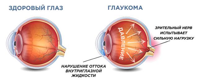 Боль в левом виске: причины, диагностика, лечение